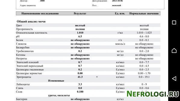 Анализ мочи по нечипоренко эритроциты 0 046 справка на оружие Тверской район